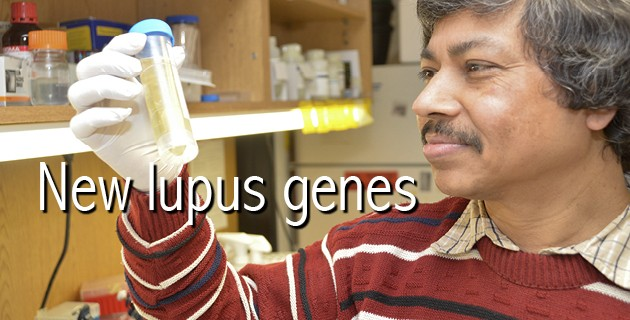 Lupus Genes